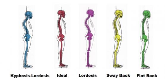 Posture & Alignment